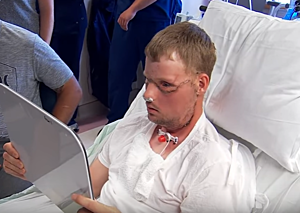 Mayo_Clinic_face_transplant